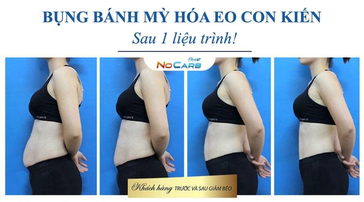 Đối tượng sử dụng thạch giảm cân Nocarb Plus