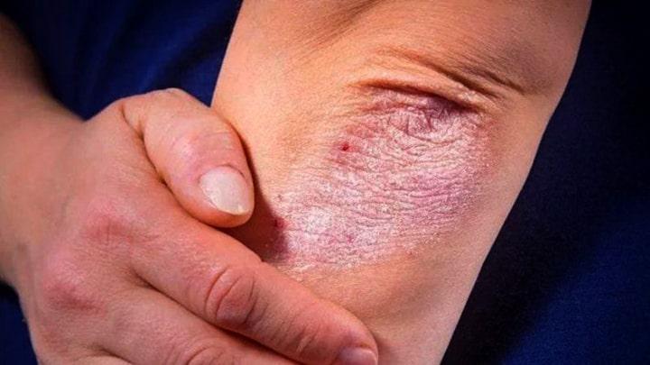 Biểu hiện bệnh vẩy nến