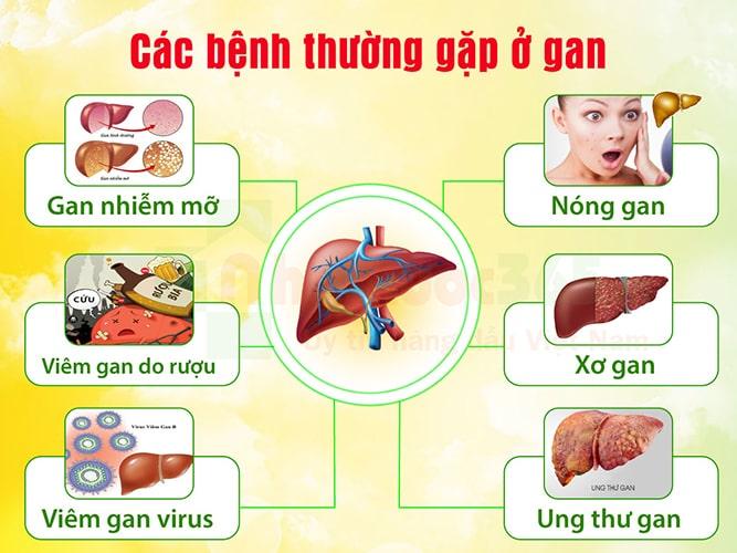Bệnh lý thường gặp về gan